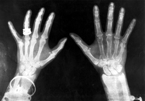 royal x-rays